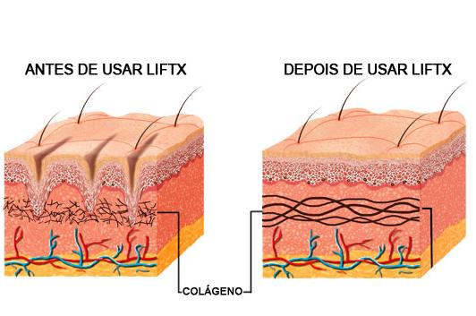 antes-depois-lift-x-8339991